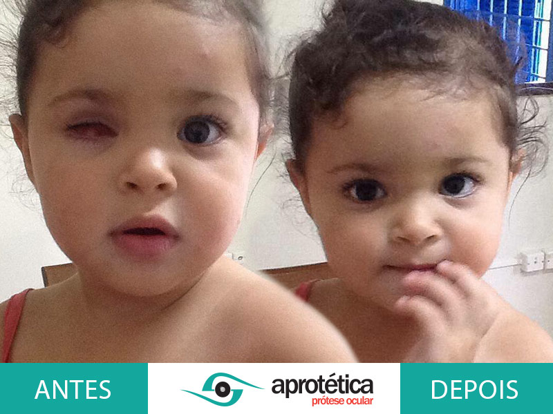 Prótese Ocular tipo Cheia