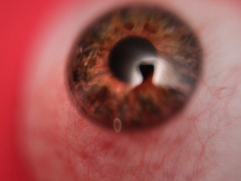 Preço de prótese ocular
