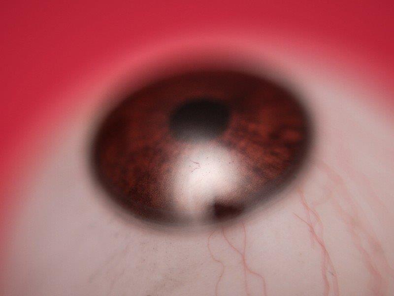 Prótese ocular em campinas