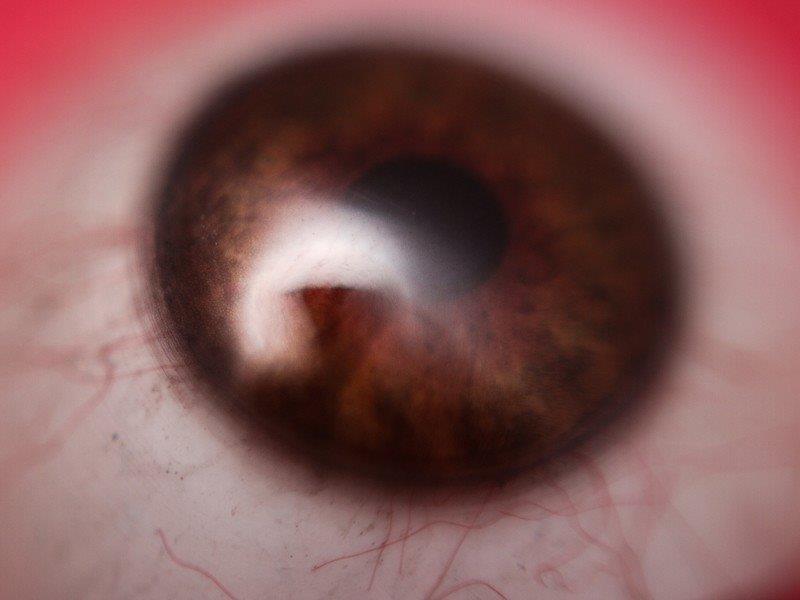 Prótese ocular sp preço
