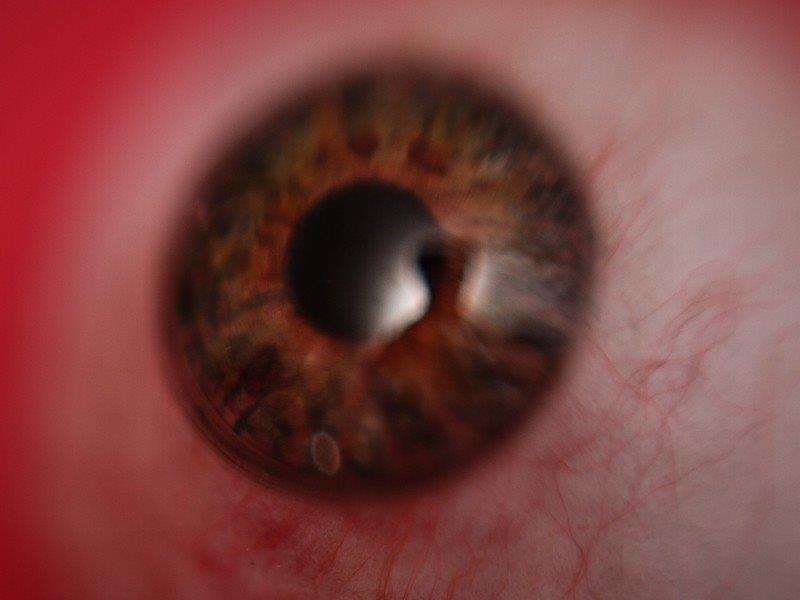 Prótese de olho preço