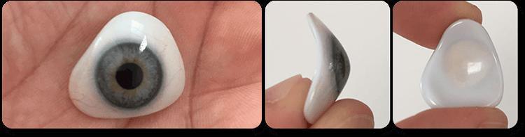 Lente Semi-Escleral